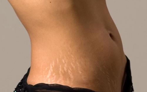 fogyás megakadályozza a striákat oximetolon zsírvesztés